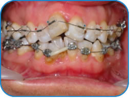 Orthodontics Boston Dental Centre
